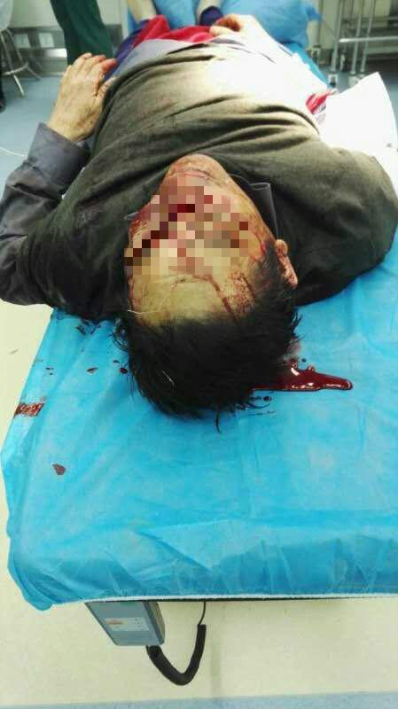 医殇日:安徽淮北医生被砍身亡!凶手太残忍