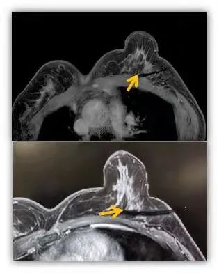 影像诊疗中心完成 1 例高难度肝包膜下转移瘤微波消融治疗