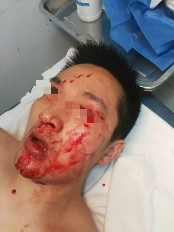 无锡一名医生被患者反锁诊室暴打