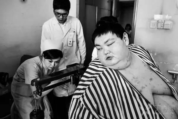 重达 530 斤,切掉 80% 的胃,他想像正常人一样