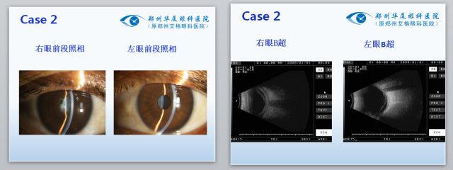 眼科专家门愿如:艾滋病玻璃体视网膜病变的手术治疗