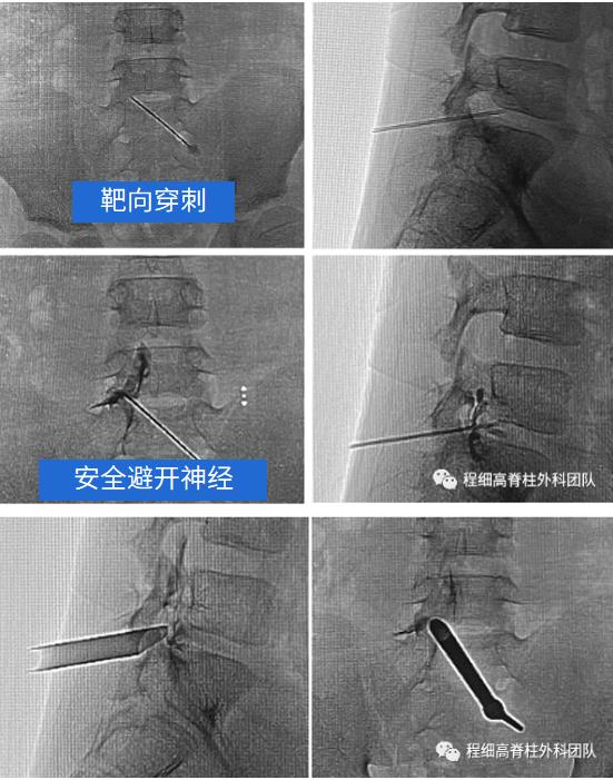 南昌大学二附院程细高脊柱微创外科团队助力 12 岁跳水运动员重返赛场