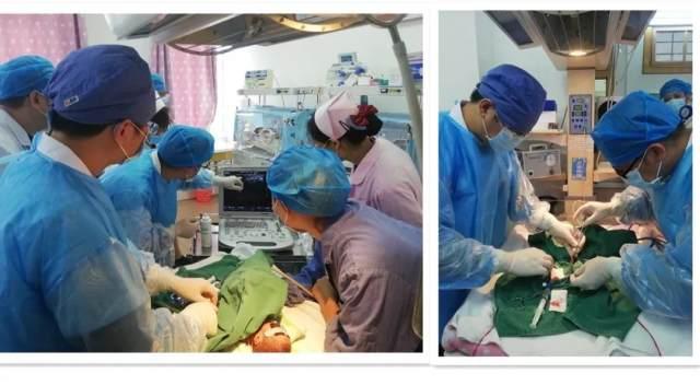 柳州市县级医院新生儿首例脐静脉置管成功