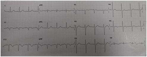 生死竞速创造「心」的奇迹,河北燕达医院成功救治一名急性心梗患者