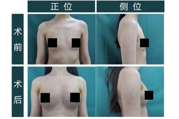 「华西逆序腔镜乳癌重建法」手术在成都颐和医院成功开展