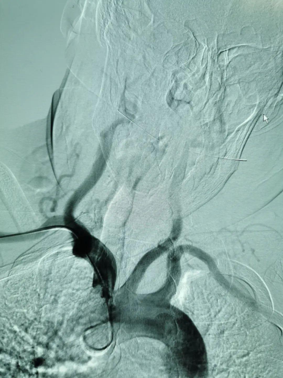 造影新技术 患者新福音—喀什地区第一人民医院常规开展桡动脉脑血管造影术