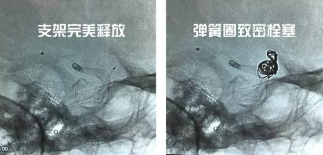 潍坊市人民医院完成潍坊首例  Pipeline 密网支架治疗颅内动脉瘤