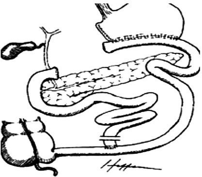 图解操作步骤:一文读懂各类对「胃」下手的外科减肥法
