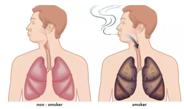 看完你会同意我说的:为什么说吸烟者的肺是世界上辐射最强的地方