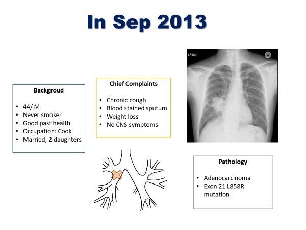 肺腺癌合并左肾上腺及脑转移病例分享
