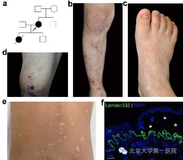重磅:中国专家发文确定皮肤角蛋白代谢新基因