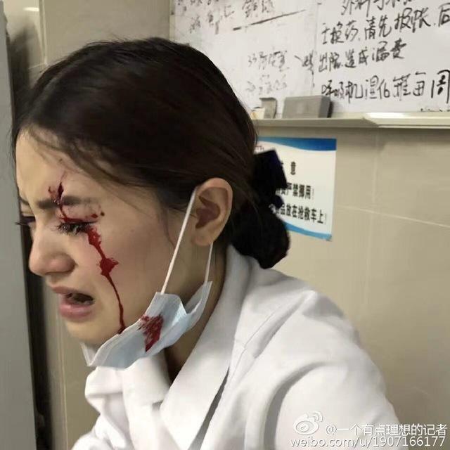 家属强闯医院诊室 致使华西医院一护士被撞伤缝合 8 针