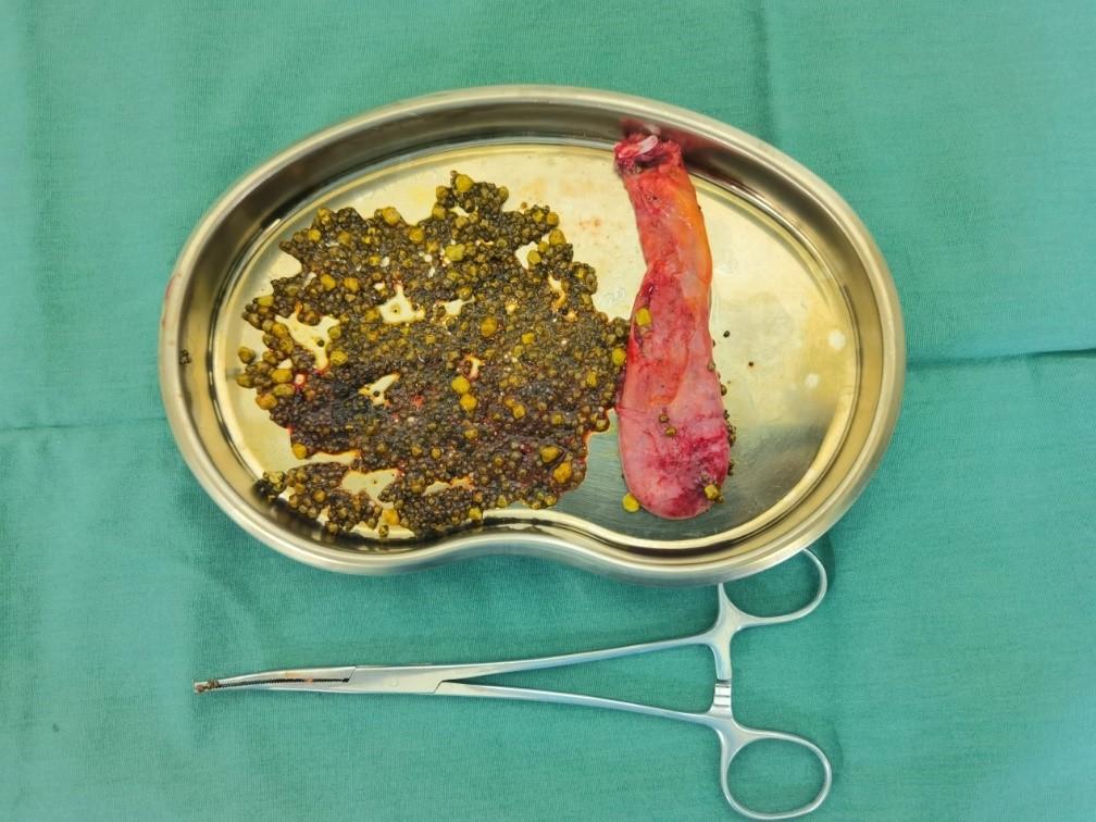 腹痛多年误以为胃病,殊不知体内千颗积石是祸根