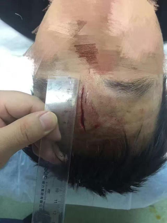 太猖獗:医暴都打到南京军区总医院了