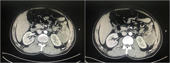 从结肠癌患者治疗过程看 MDT 的临床作用