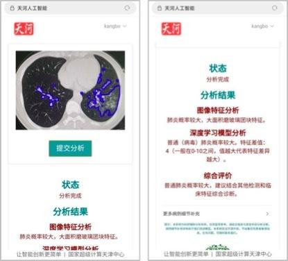 天津医科大学肿瘤医院 10 秒完成新冠肺炎 CT 影像分析