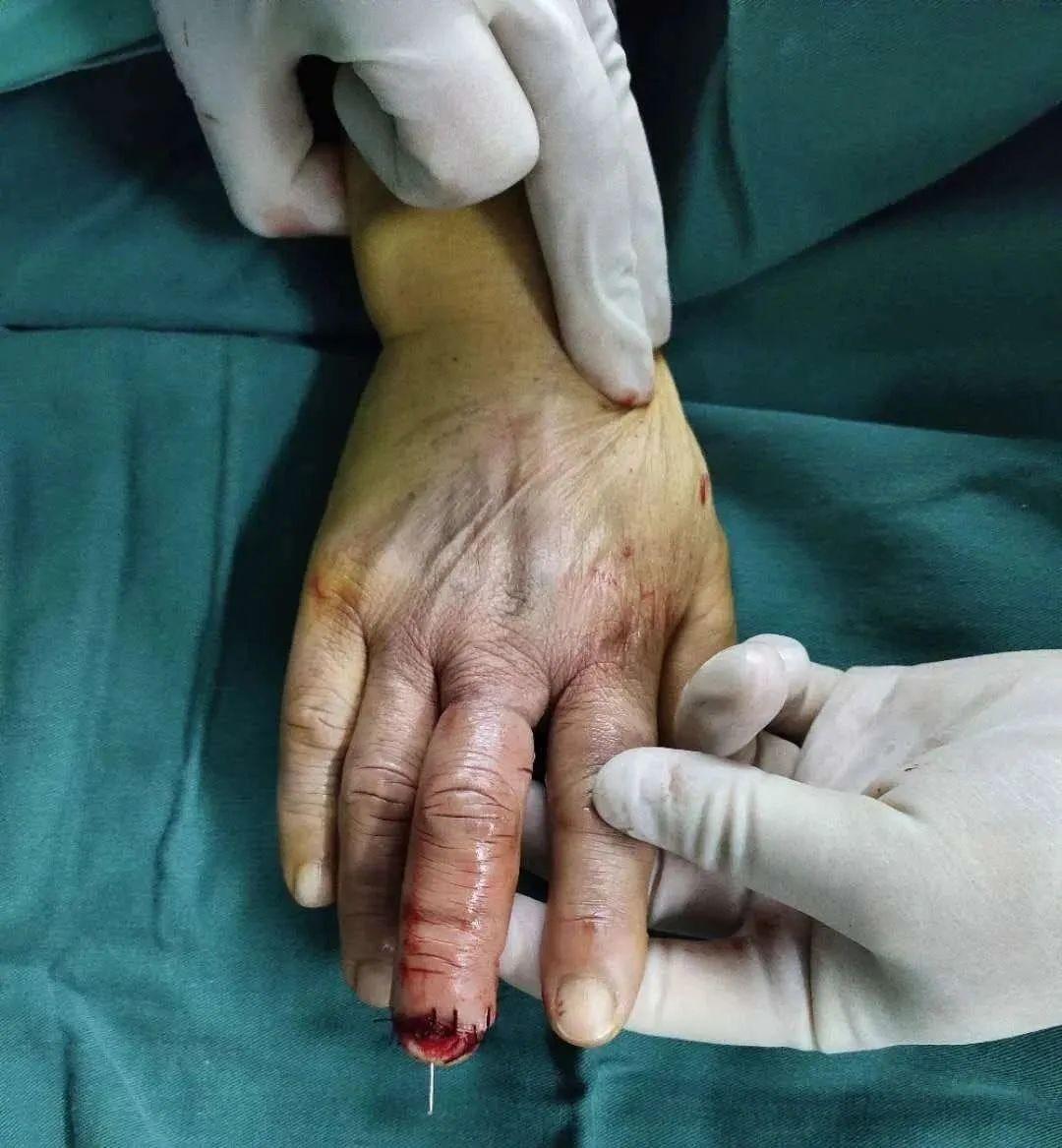 在血管上「绣花」,「绝望」手指终获新生!
