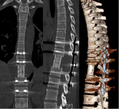 花季少女脊椎长瘤,绵阳市第三人民医院「皇冠」手术「瘤」去病除