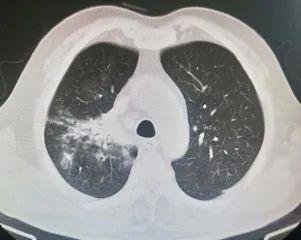 烟台海港医院呼吸内科治愈一名肺部严重感染者,找到疾病元凶!