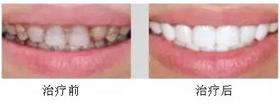 牙齿美容,让你成为这条Gai上最靓的仔