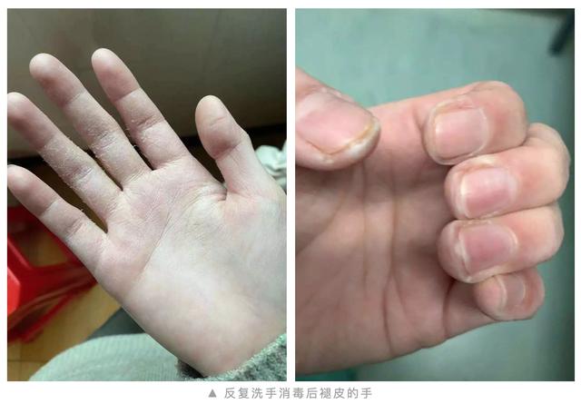 温州市中西医结合医院:抗疫日记|在感染病区的 10 天