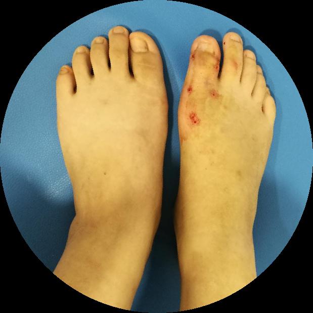神奇!18 岁女孩面临截趾,医生一波操作,让趾骨缩短再延长,她的脚趾又「复原」了~