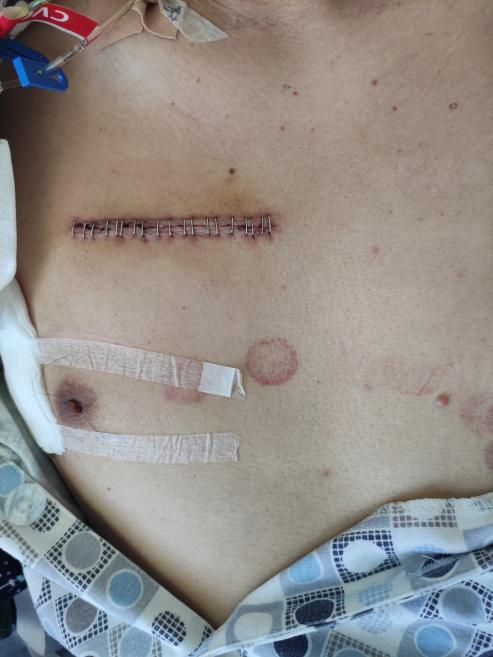 南昌大学第二附属医院心脏大血管外科为熊猫血患者完成微创胸腔镜下主动脉瓣置换术