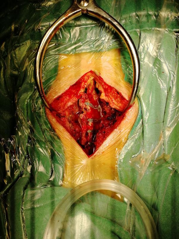 钢筋穿腰导致四肢截瘫,医生 3 次手术成功施救