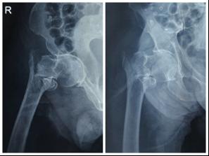 十种合并症的 90 岁髋部骨折老人还能手术吗?