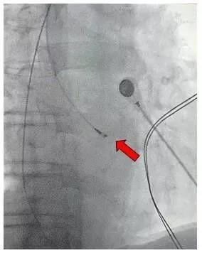 83 岁老奶奶成为潍坊市首例希氏束心脏起搏手术受益者