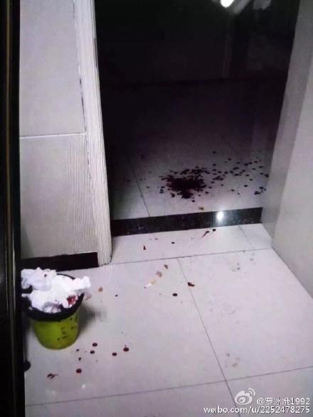 重庆市一外科主任值班时被砍致毁容、肺破裂
