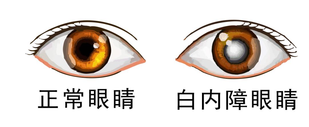 请注意!得了这个眼科疾病,手术是唯一的治疗方法