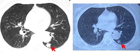 咳血十年又查出肺结节,是肺癌还是其他?