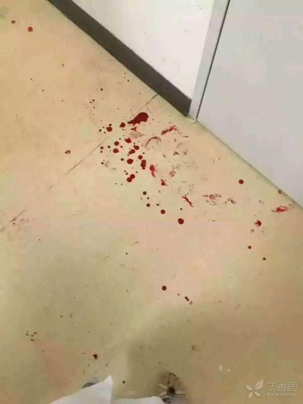 严惩打人者!医生加班联系专科会诊准备手术 却被患者家属殴打