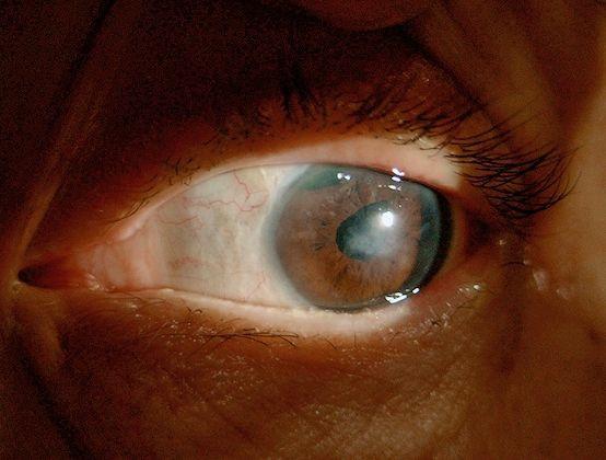 退休老师患疱疹病毒性角膜炎险遭摘眼球,60 年顽疾降伏