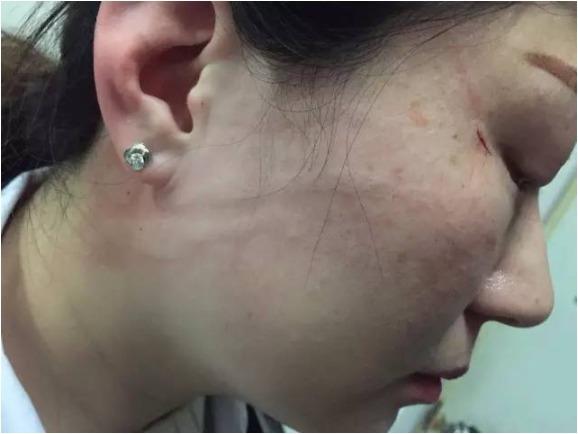 湖南省人民医院女医生被家属殴打致脑震荡 医院发声明要求严惩凶手