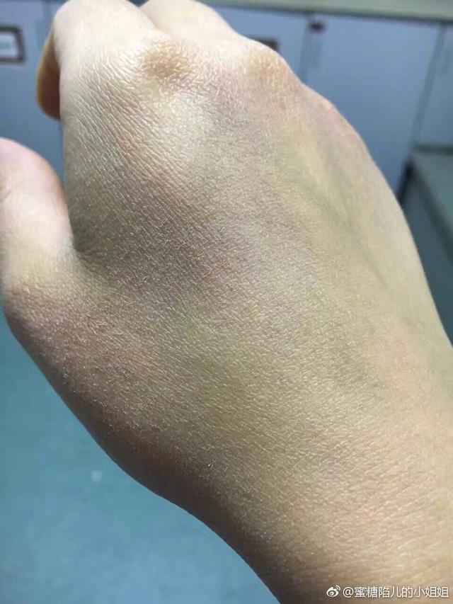 有一种名片,叫护士的手