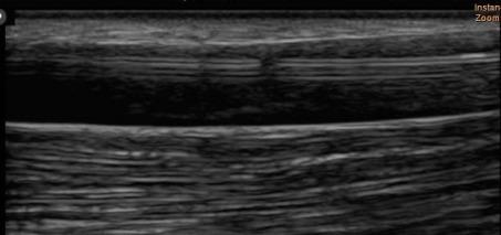 病例分析:超声引导下 AVG 球囊取栓并狭窄扩张术