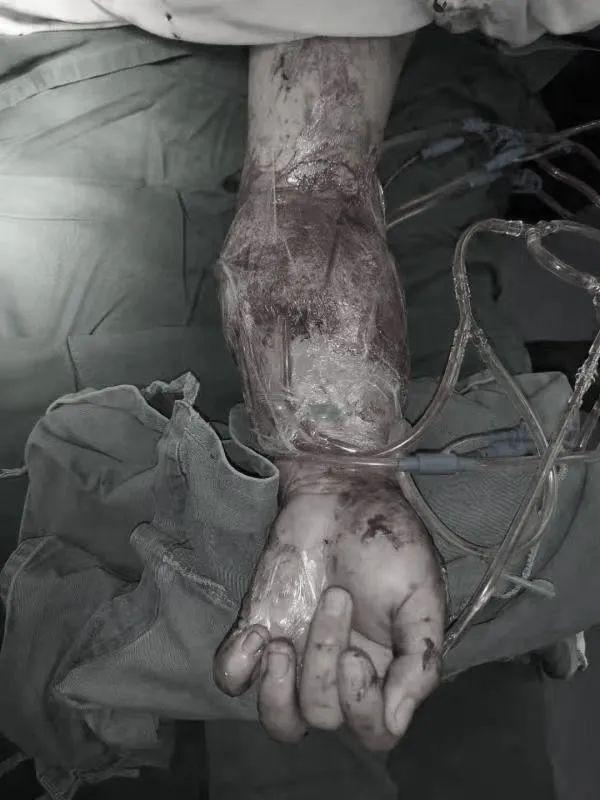 极限操作,19 岁少年断臂重生