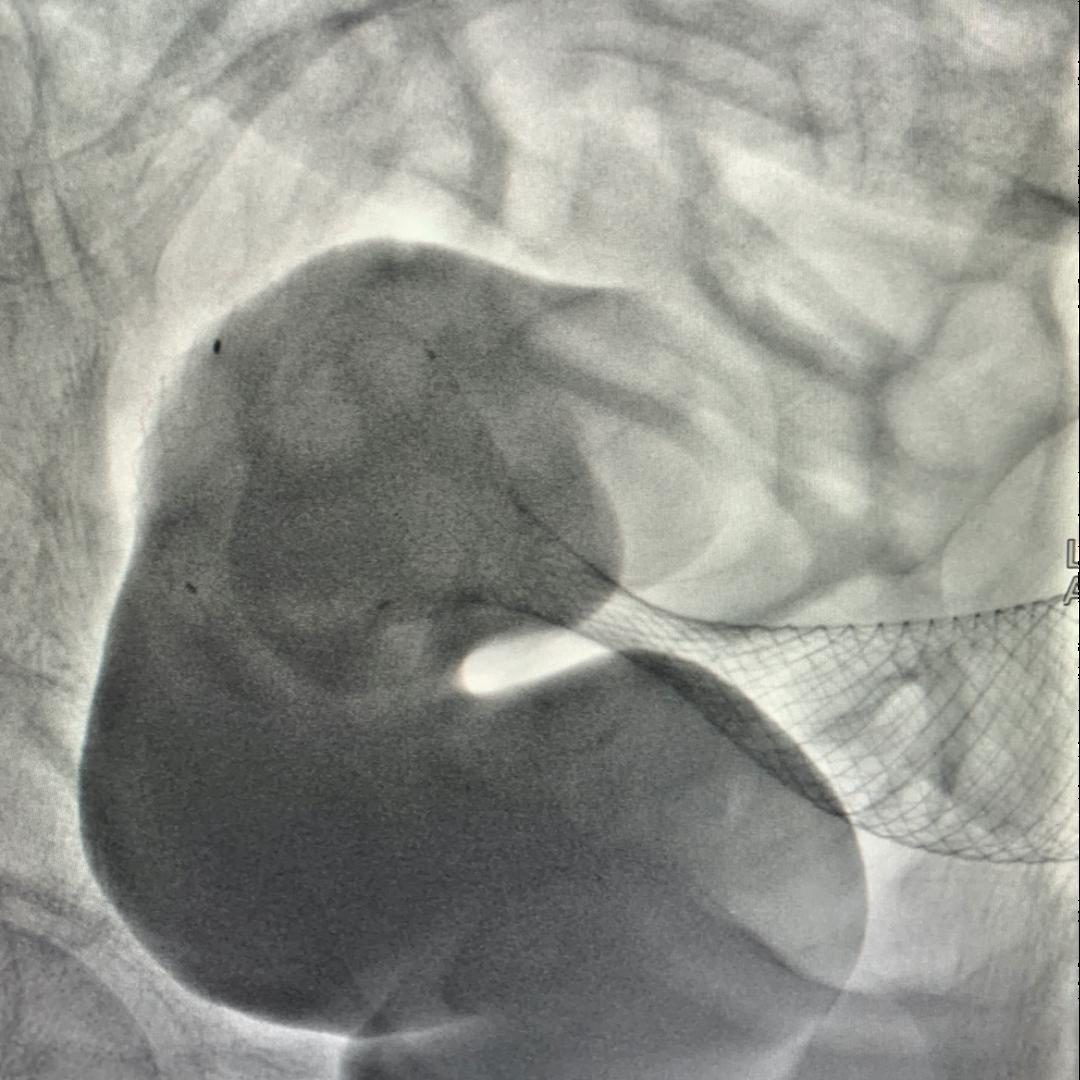 前海人寿广州总医院完成多例肠道支架植入术,为晚期结直肠癌患者带来福音
