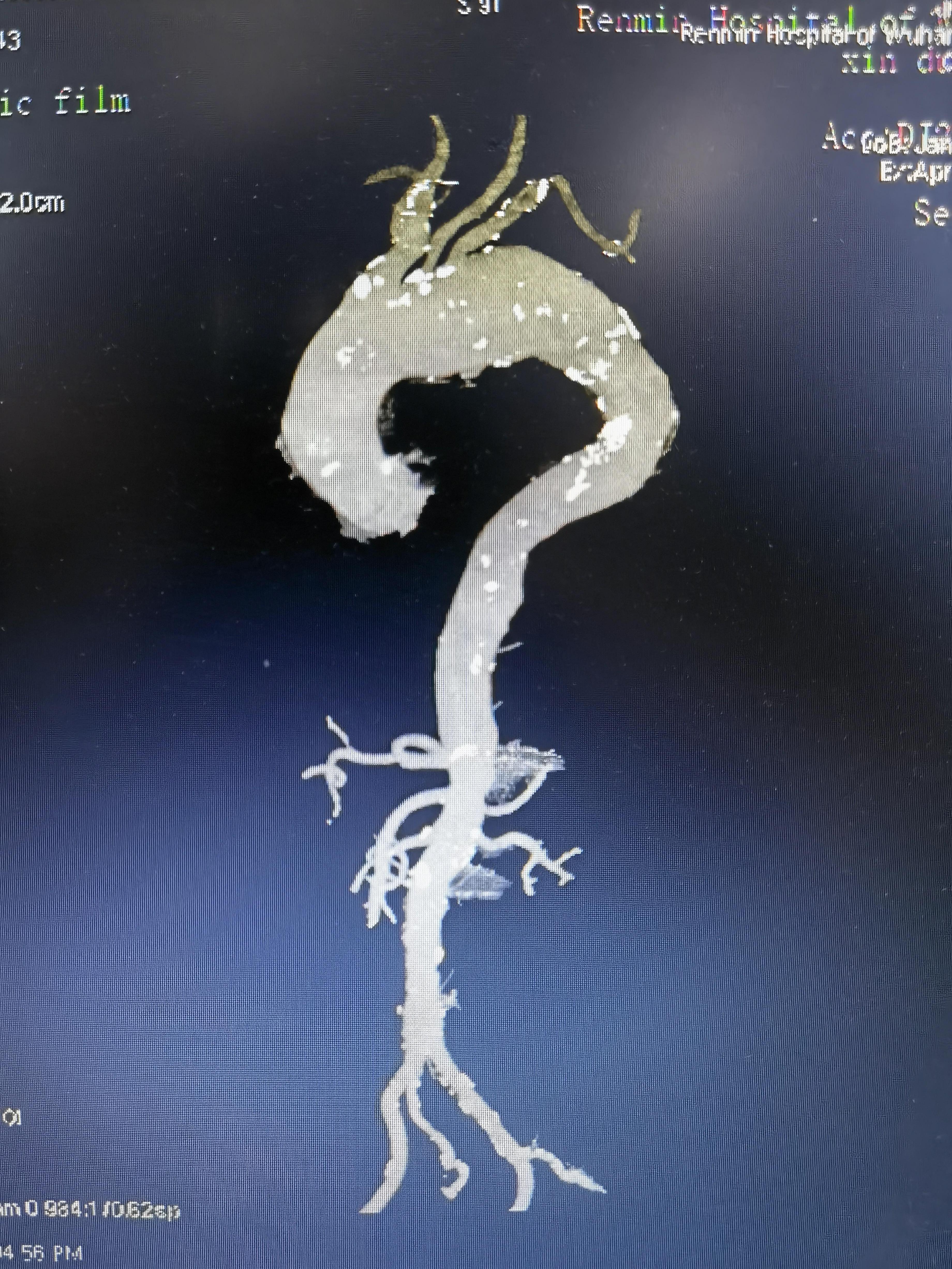 武汉大学人民医院应用体外 3D 模型重建人体最大血管降服主动脉瘤