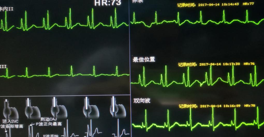 浙江大学医学院附属第一医院:静脉很细输液困难,「PICC」来了