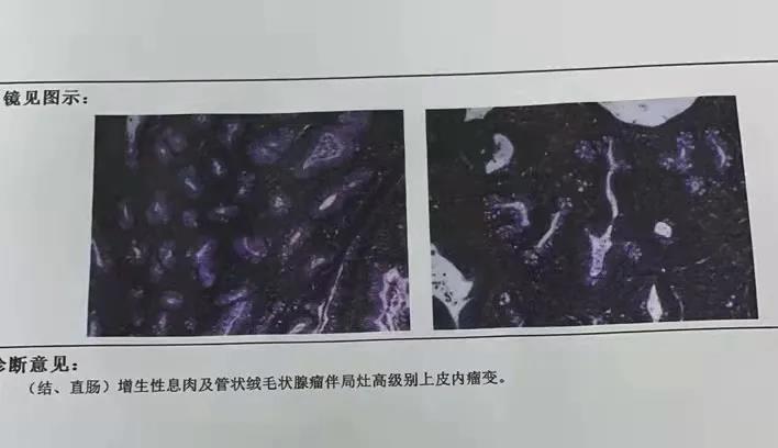绥化惠民医院消化内科成功完成一例巨大肠息肉切除病例