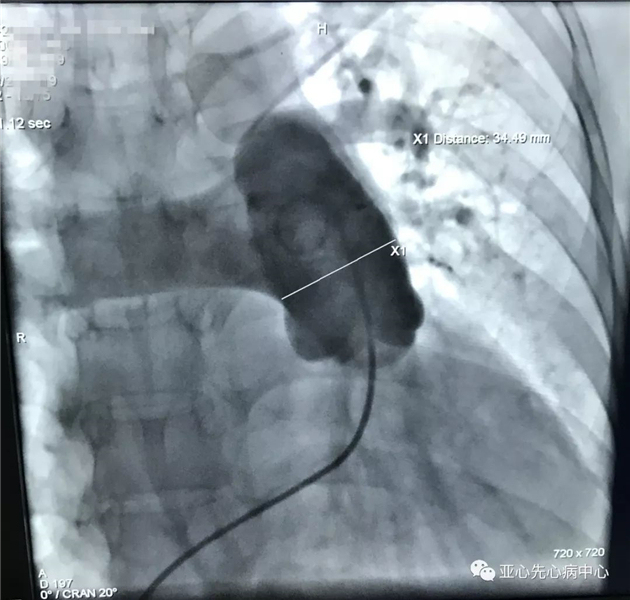 张刚成团队成功实施「经皮肺动脉去神经术」