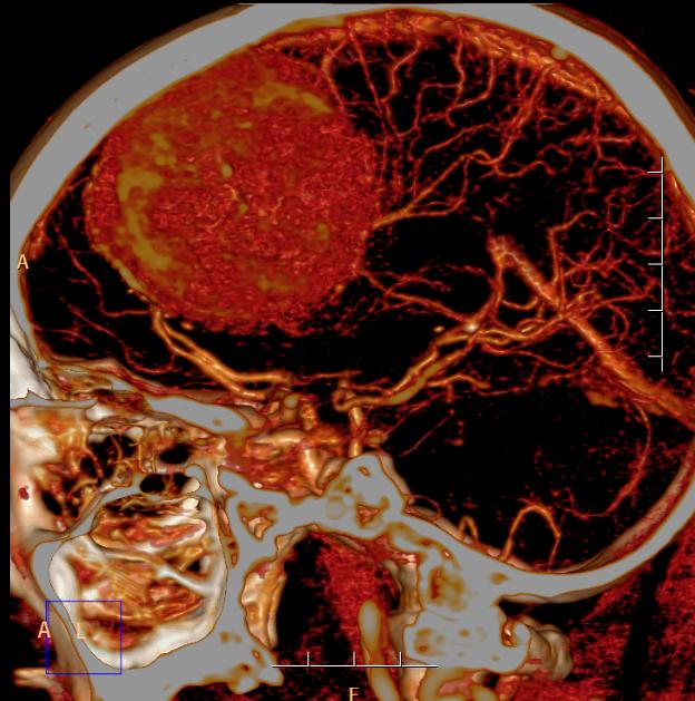 80 岁大爷接受脑肿瘤切除术 高龄不是手术绝对禁忌
