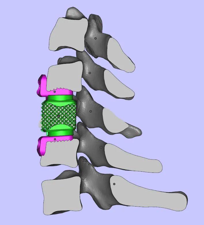 世界首例!我院骨科完成高难度、高科技 3D 打印可动人工颈椎-椎间盘复合体植入术