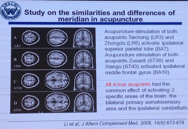 China-INI:重视神内、基础、影像、放射多学科协作