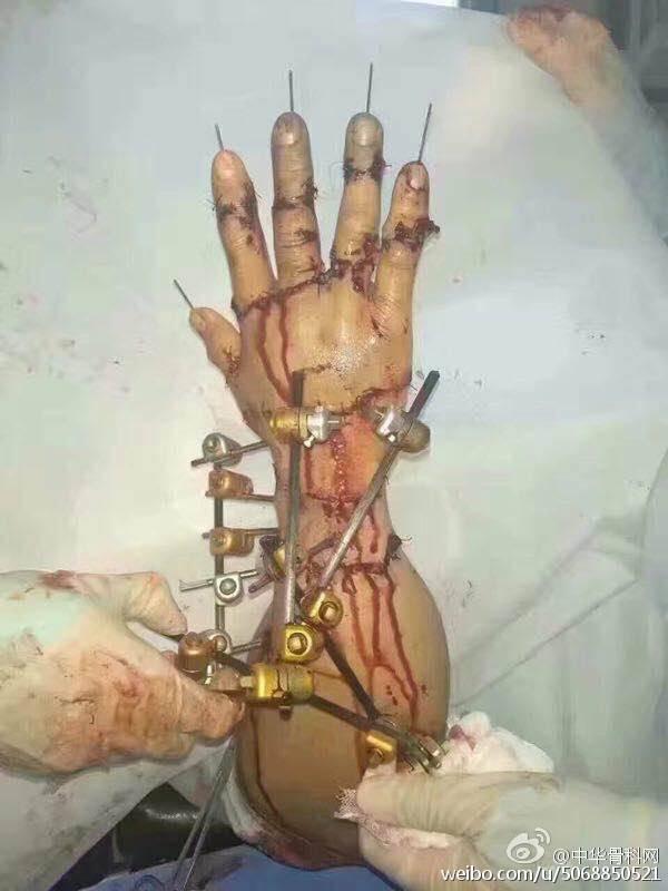 六段九节断指全部存活  潍坊 89 医院或载入外科手术史册