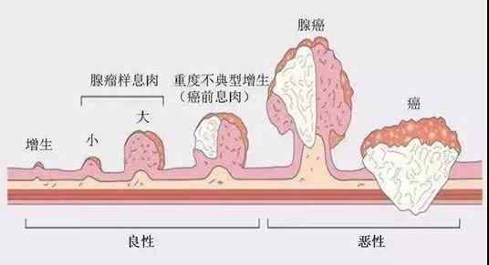 深圳市中医肛肠医院:小心!息肉到癌的「一步之遥」(一)