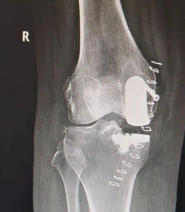 烟台海港医院骨外科保膝治疗团队成功完成首台膝关节单髁置换手术